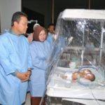 Gubernur Besuk Bayi Kembar Dua Kepala
